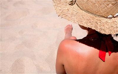sunburn_2928479b