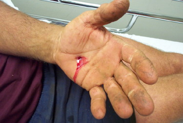 Nail-gun-injury-Hand-004-1