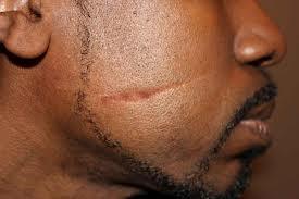 facial-scar